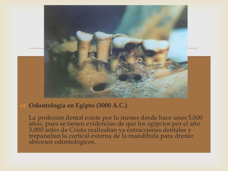Historia de la odontología Slide 3