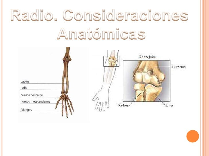 FRACTURA DE CABEZA DE RADIO Y CUPULA RADIAL Slide 3