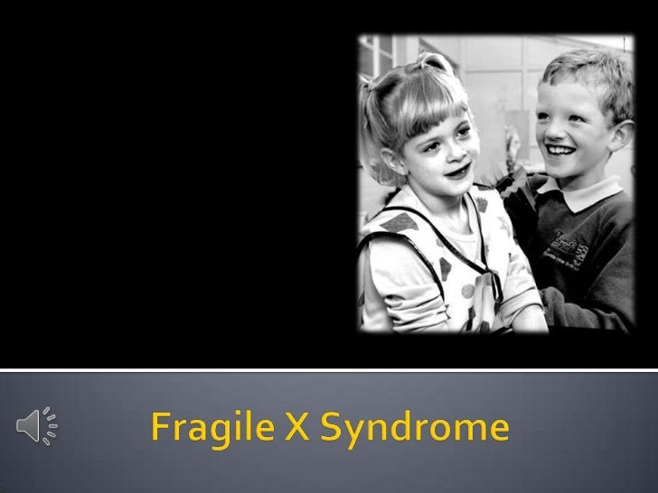 fragile x syndrome What is fragile x syndrome fragile x syndrome is the most common form of inherited intellectual disability in males and is also a significant cause of intellectual disability in females it affects about 1 in 4,000 males and 1 in 8,000 females and occurs in all racial and ethnic groups nearly.