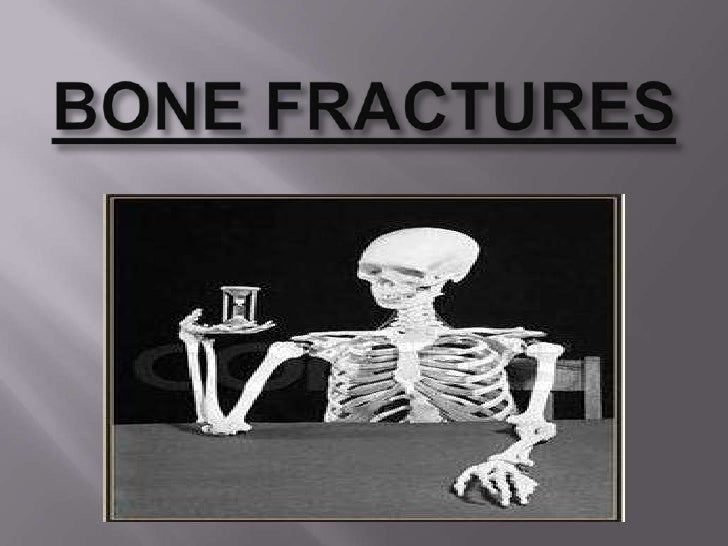 0814 Fracture And Repair Medical Images For Powerpoint Manual Guide