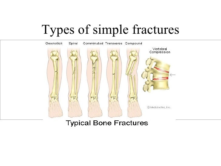 a study of fractures and its causes Patients were evaluated in respect of sex, age, month and season of injury, diagnosis, period of hospitalisation, and requirement for amputation patients with head, chest, or abdominal trauma were excluded from the study open fractures were classified according to the gustilo– anderson classification (6.