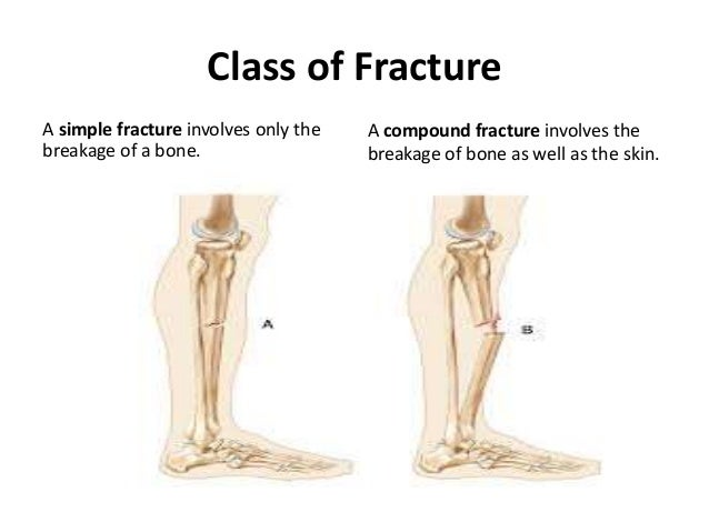 Chosen Fracture Types