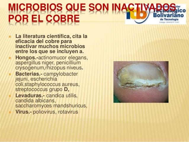 Que curar el hongo sobre las uñas las manos