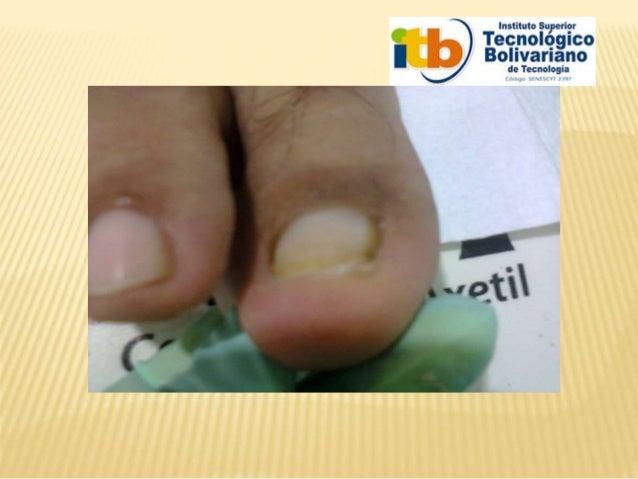La variedad del hongo de los pie y el tratamiento