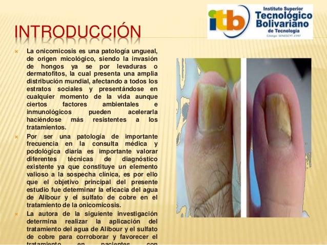 Sanar el hongo sobre las uñas los métodos públicos