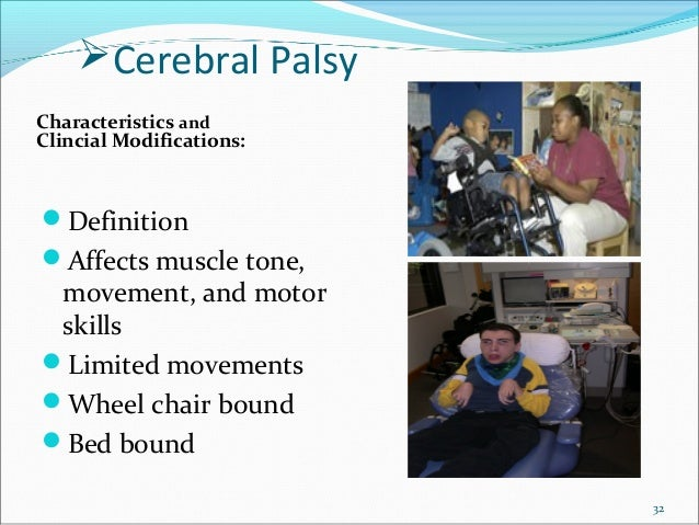 Treatment Modification For Treating Special Needs Patients