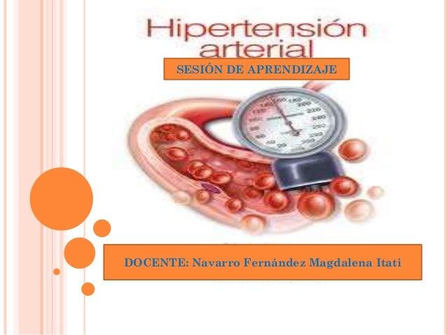 Power Point.2014_ Sesión de Aprendizaje _ Hipertensión..