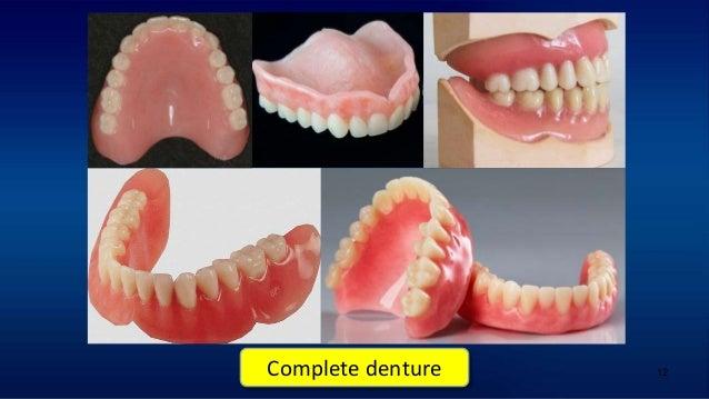 12 Complete denture