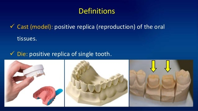 4 Definitions  Cast (model): positive replica (reproduction) of the oral tissues.  Die: positive replica of single tooth.