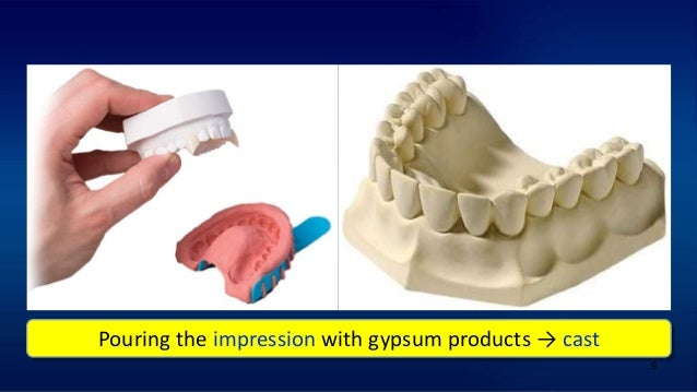 9 Pouring the impression with gypsum products → cast