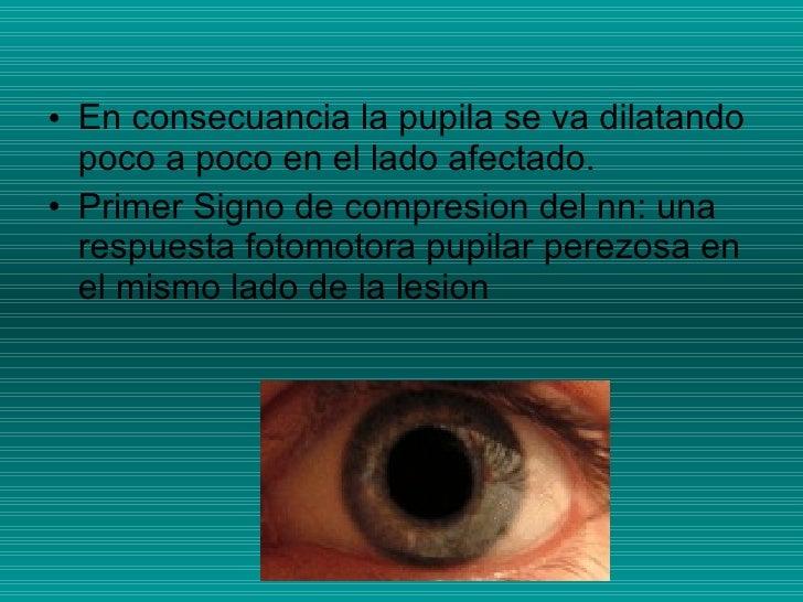 <ul><li>En consecuancia la pupila se va dilatando poco a poco en el lado afectado. </li></ul><ul><li>Primer Signo de compr...