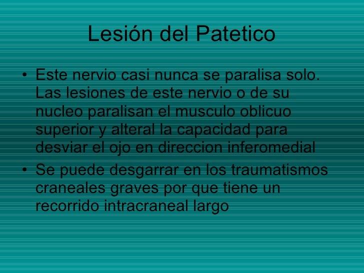 Lesión del Patetico <ul><li>Este nervio casi nunca se paralisa solo. Las lesiones de este nervio o de su nucleo paralisan ...