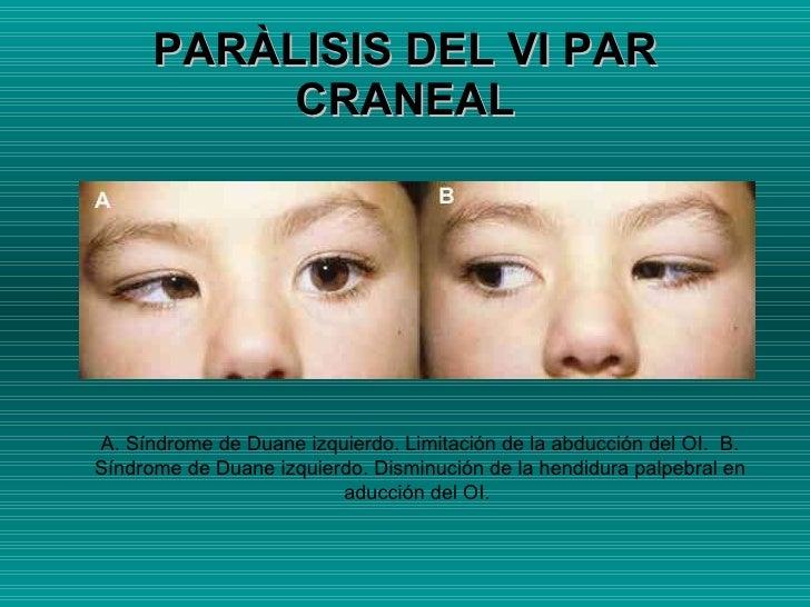 PARÀLISIS DEL VI PAR CRANEAL A. Síndrome de Duane izquierdo. Limitación de la abducción del OI.  B. Síndrome de Duane izqu...