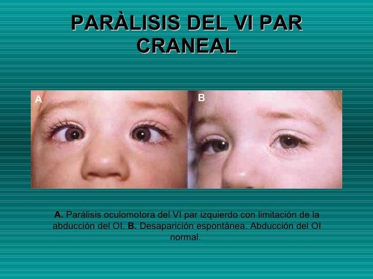 PARÀLISIS DEL VI PAR CRANEAL A.  Parálisis oculomotora del VI par izquierdo con limitación de la abducción del OI.  B.  De...