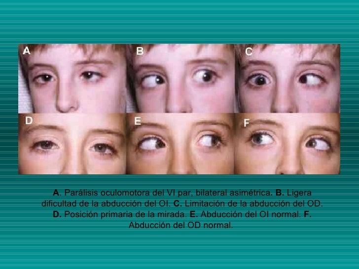 A . Parálisis oculomotora del VI par, bilateral asimétrica . B.  Ligera dificultad de la abducción del OI.  C.  Limitación...