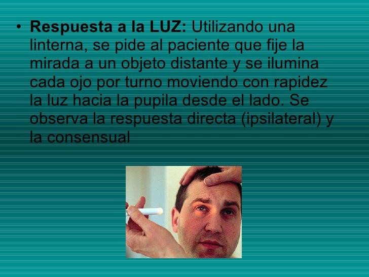 <ul><li>Respuesta a la LUZ:  Utilizando una linterna, se pide al paciente que fije la mirada a un objeto distante y se ilu...