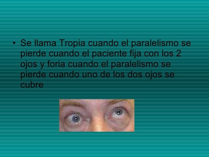<ul><li>Se llama Tropia cuando el paralelismo se pierde cuando el paciente fija con los 2 ojos y foria cuando el paralelis...