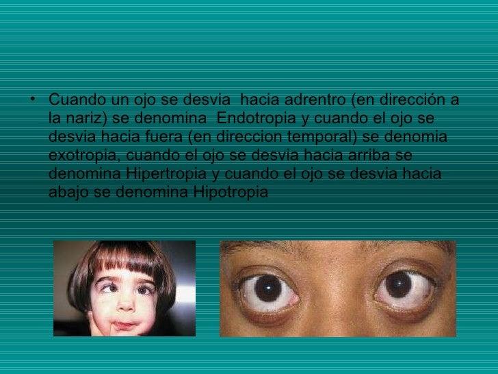 <ul><li>Cuando un ojo se desvia  hacia adrentro (en dirección a la nariz) se denomina  Endotropia y cuando el ojo se desvi...