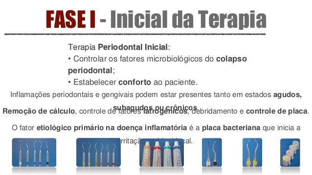 FASE I - Inicial da Terapia Terapia Ortodôntica: • Relações dentárias interarcos e intra-arcos; • Necessidade de movimento...