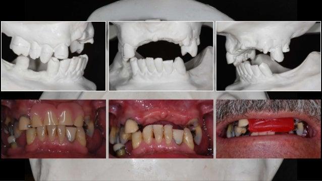 FASE I - Inicial da Terapia Um número significante dos fatores etiológicos da doença periodontal são iatrogênicos e podem ...