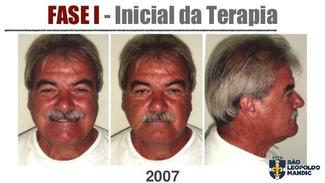 FASE I - Inicial da Terapia 2007