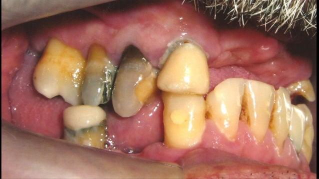 FASE I - Inicial da Terapia Terapia Periodontal Inicial: • Controlar os fatores microbiológicos do colapso periodontal; • ...