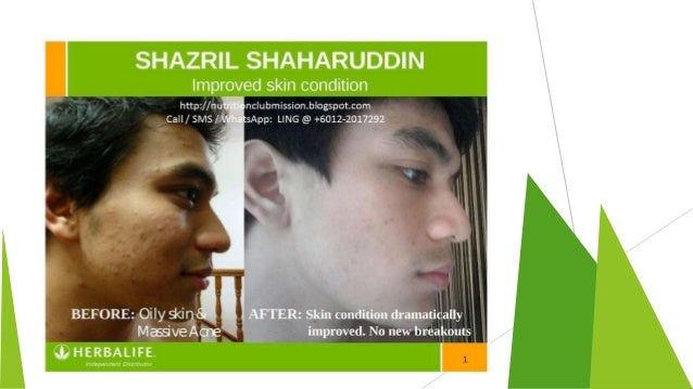 Skin Care Products Of Herbalife