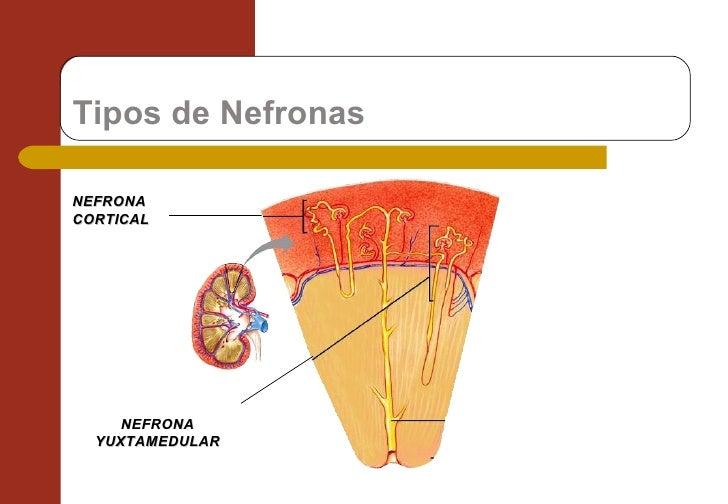 Tipos de Nefronas NEFRONA CORTICAL NEFRONA YUXTAMEDULAR