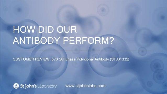 HOW DID OUR ANTIBODY PERFORM? CUSTOMER REVIEW: p70 S6 Kinase Polyclonal Antibody (STJ31332)