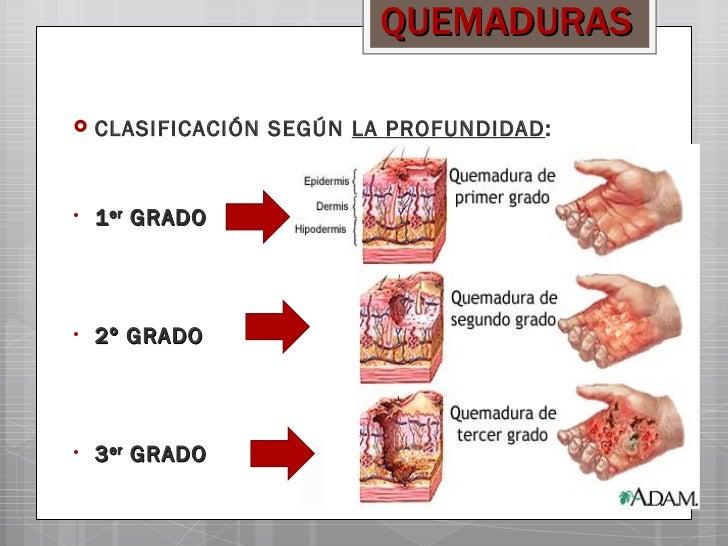 Tema 7 heridas y quemaduras for Definicion de gastronomia pdf