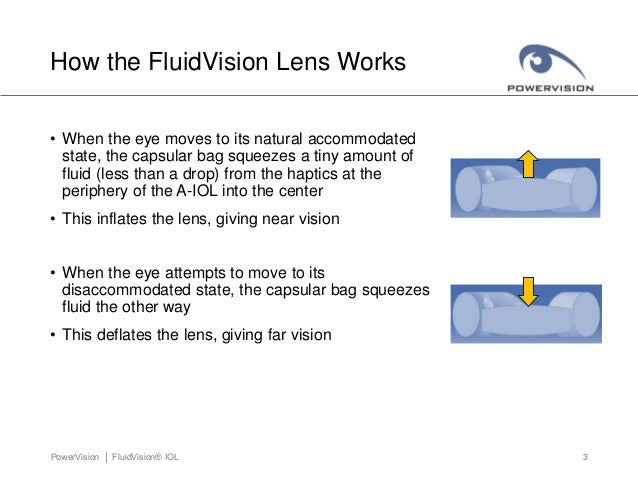 Fluidvision accommodating iol power vision