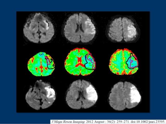 Wyniki badania PROACT II przyniosły wiedzę, iż przynajmniej do 6 godzin od wystąpienia objawów neurologicznych istnieje ob...