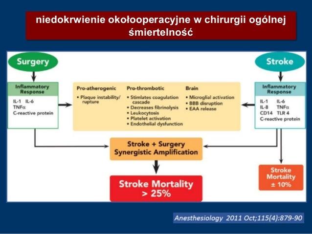 niedokrwienie okołooperacyjne w chirurgii ogólnej śmiertelność