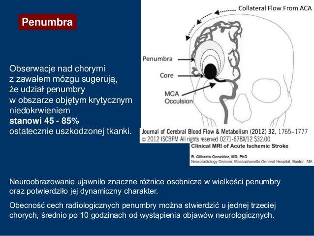 Obserwacje nad chorymi z zawałem mózgu sugerują, że udział penumbry w obszarze objętym krytycznym niedokrwieniem stanowi 4...