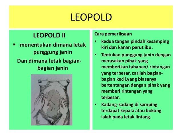 pp leopold