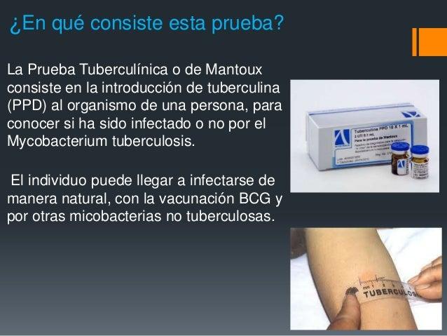 Padece de tuberculosis - 2 9