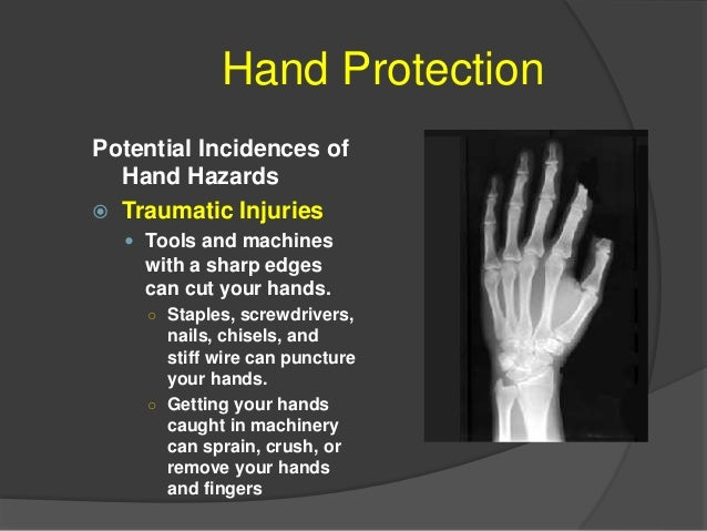 Hand Protection Potential Incidences of Hand Hazards  Contact Injuries  Coming into contact with caustic or toxic chemic...