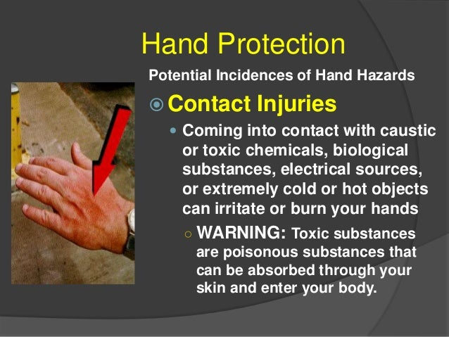 Hand Protection Repetitive Motion Injuries Whenever you repeat the same hand movement over a long period of time, you run ...