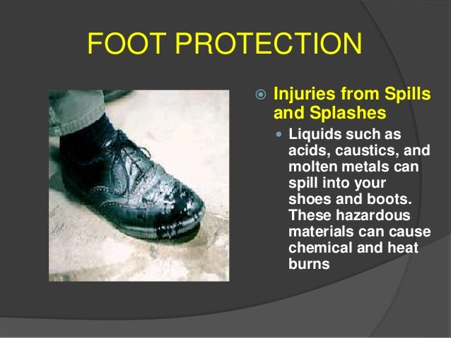 Foot Protection Potential Incidences of Foot Hazards  Compression Injuries  Heavy machinery, equipment, and other object...
