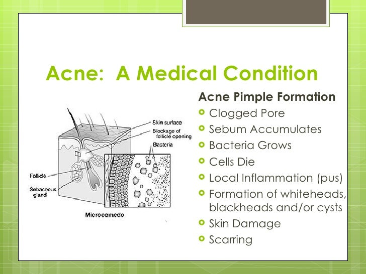 Acne:  A Medical Condition <ul><li>Acne Pimple Formation </li></ul><ul><li>Clogged Pore </li></ul><ul><li>Sebum Accumulate...
