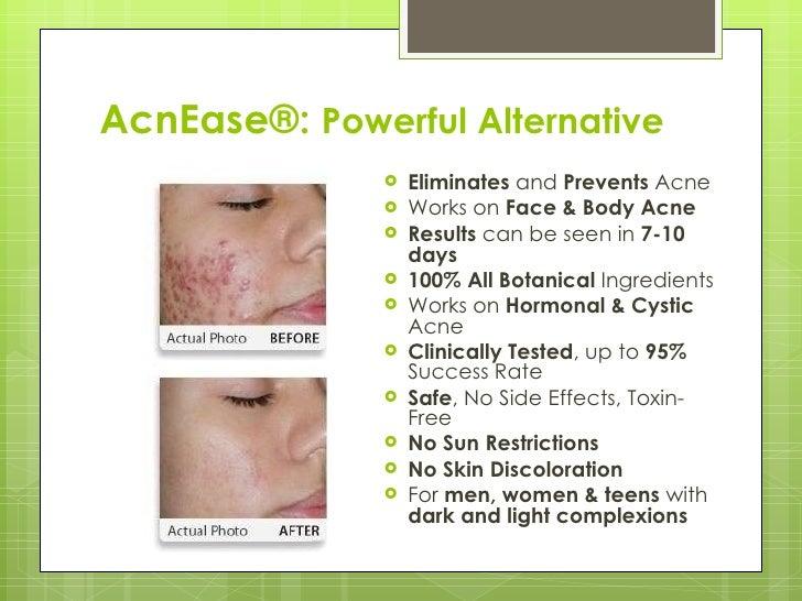 AcnEase®:  Powerful Alternative <ul><li>Eliminates  and  Prevents  Acne </li></ul><ul><li>Works on  Face & Body Acne </li>...