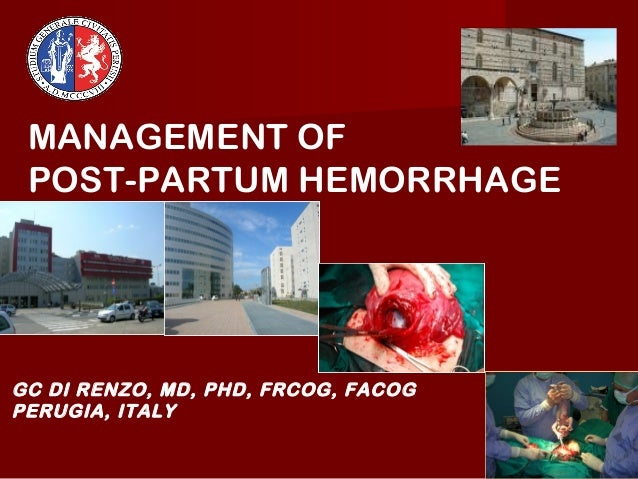 MANAGEMENT OF POST-PARTUM HEMORRHAGEGC DI RENZO, MD, PHD, FRCOG, FACOGPERUGIA, ITALY