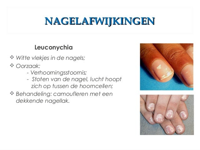 scheurende nagels oorzaak
