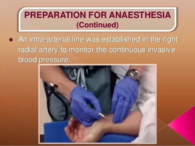 Anaestehsia for Cesarean section in a patient with Central ...