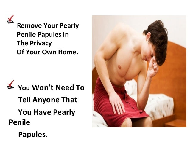 Ppp Removal Papules How To Get Rid Of Ppp Treatment Bumps On Your
