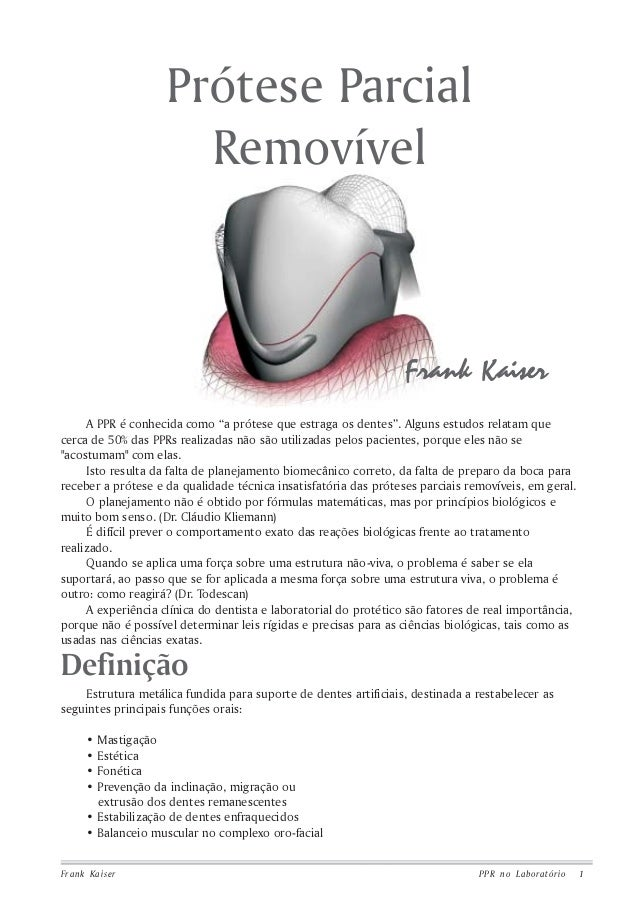 """Prótese Parcial Removível  Frank Kaiser A PPR é conhecida como """"a prótese que estraga os dentes"""". Alguns estudos relatam q..."""