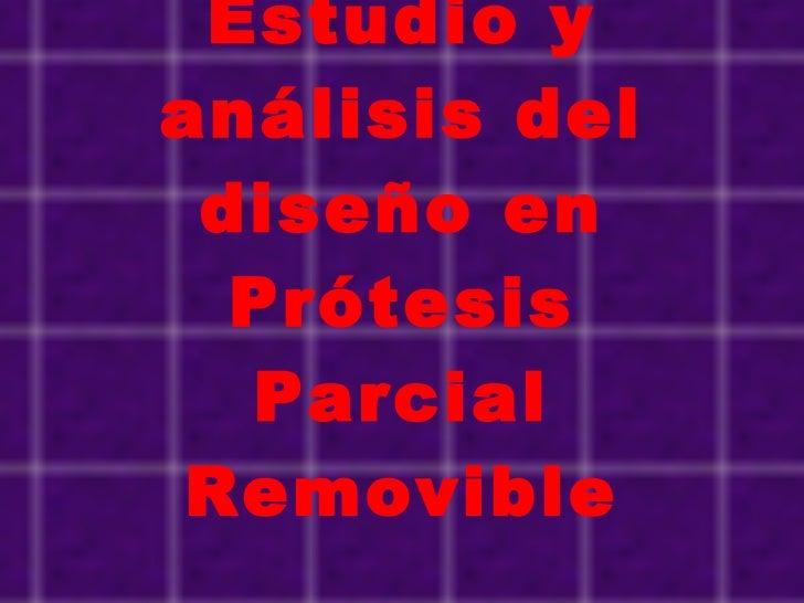 Estudio y análisis del diseño en Prótesis Parcial Removible