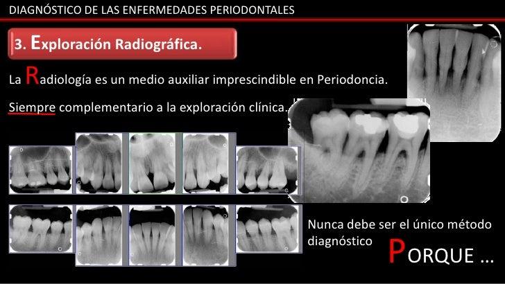 DIAGNÓSTICO DE LAS ENFERMEDADES PERIODONTALES3. Exploración Radiográfica.La   Radiología es un medio auxiliar imprescindib...