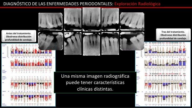 DIAGNÓSTICO DE LAS ENFERMEDADES PERIODONTALES: Exploración Radiológica                                                    ...