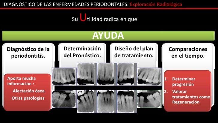 DIAGNÓSTICO DE LAS ENFERMEDADES PERIODONTALES: Exploración Radiológica                          Su   Utilidad radica en qu...